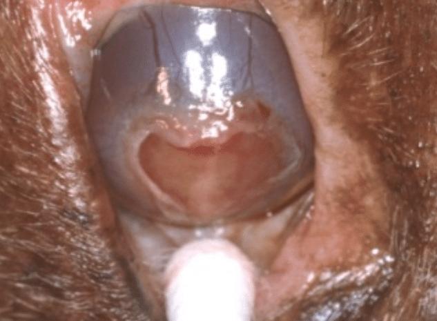 ulcère, cornée, indolent, boxer, atone, débridement, raclage, Q-tip, kératotomie