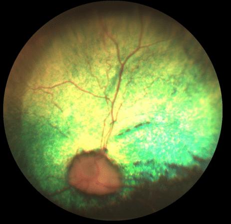 Atrophie rétine, Hyperréflectivité, chien, fond d'oeil, pupille dilatée, vision, nuit, aveugle, cécité