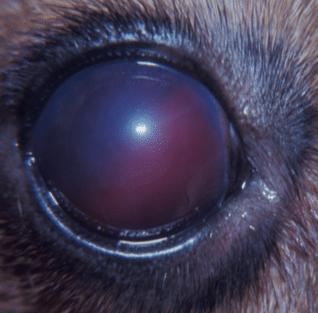 sang, œil, glaucome, secondaire, hyphème